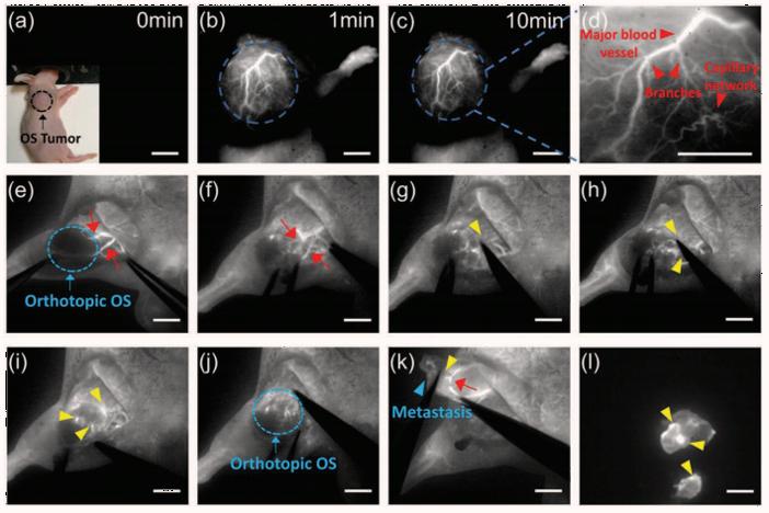 In Vivo Fluorescence Imaging in the NIR-II Spectral Region